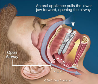 Warrenton Sleep Apnea Dentist