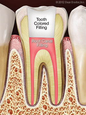After Root Canal