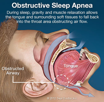 obstructive-sleep-apnea Warrenton